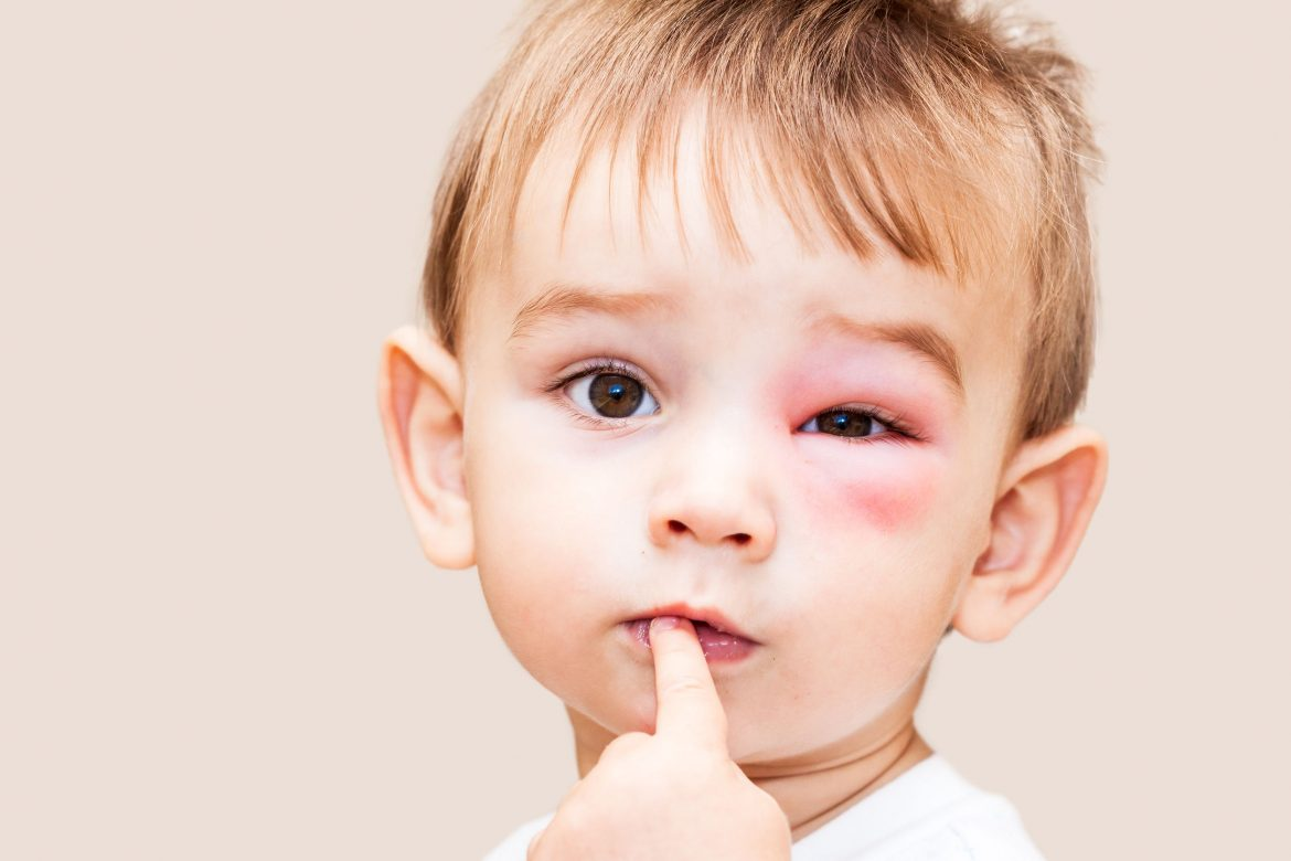 Dr. Burton continues her series about sinusitis and now shares some of the dangerous sinusitis complications that can happen and need to be prevented.